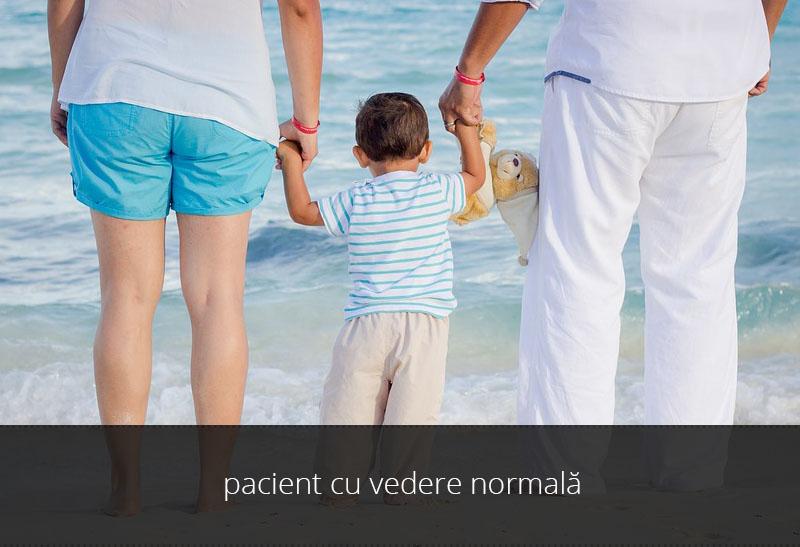 vedere-cataracta-congenitala-1