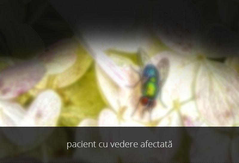 vedere-ptoza-afectata