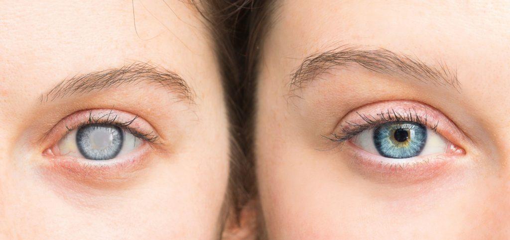 cauzele cataractei