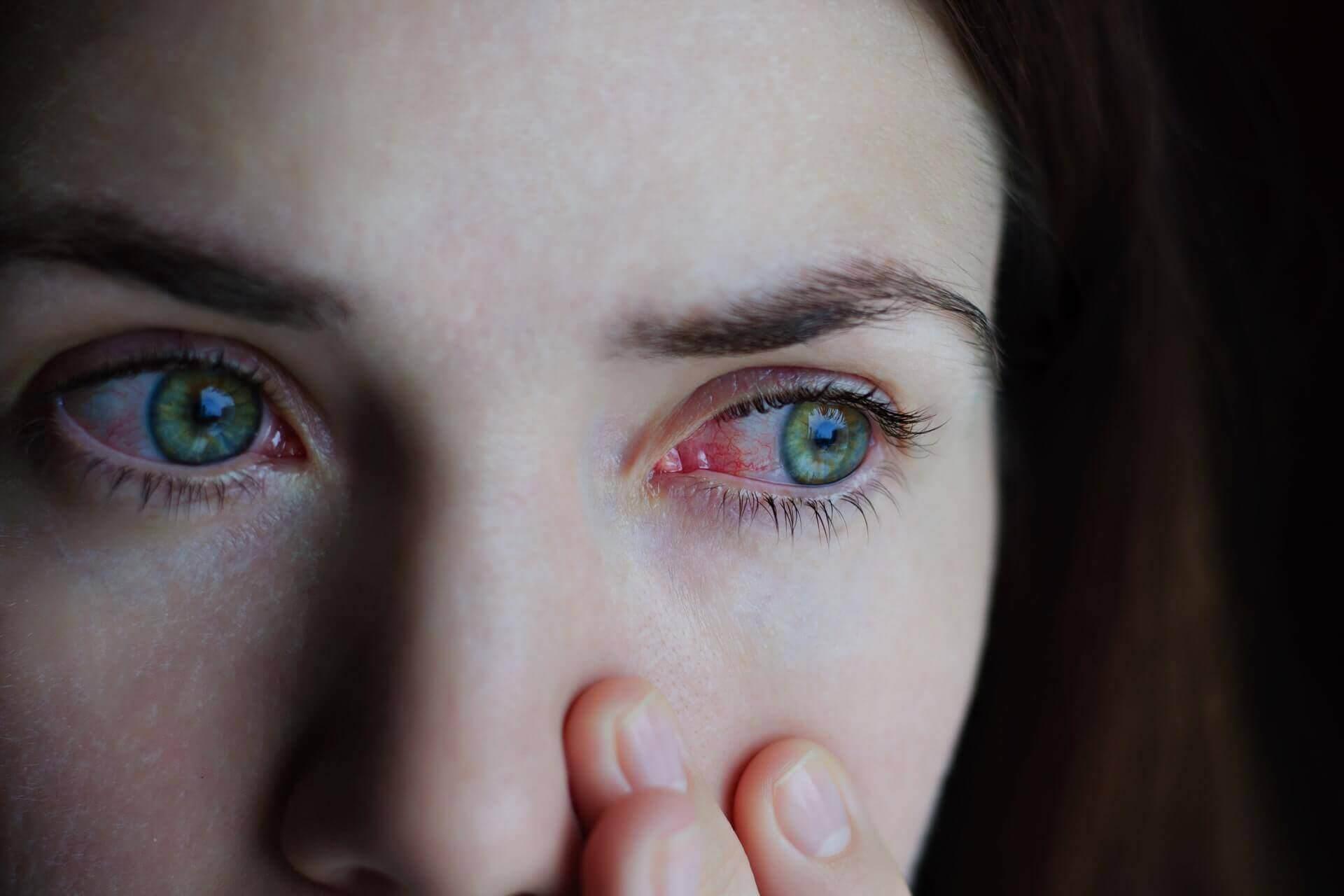 Roșeața la ochi –  trebuie să îți faci griji când apare sau este neînsemnată?