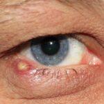 Ulciorul la ochi – De ce trebuie să alegi tratamentul oftalmologic în cazul apariției acestuia