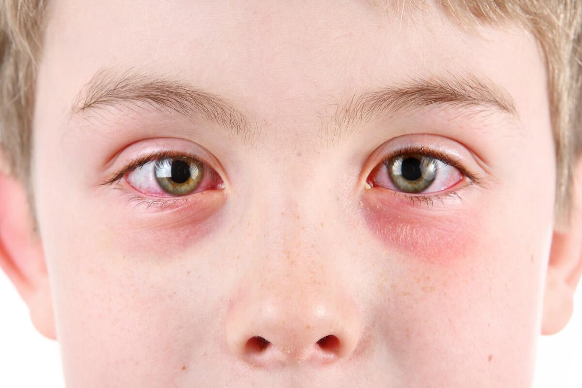 conjunctivita poate afecta vederea